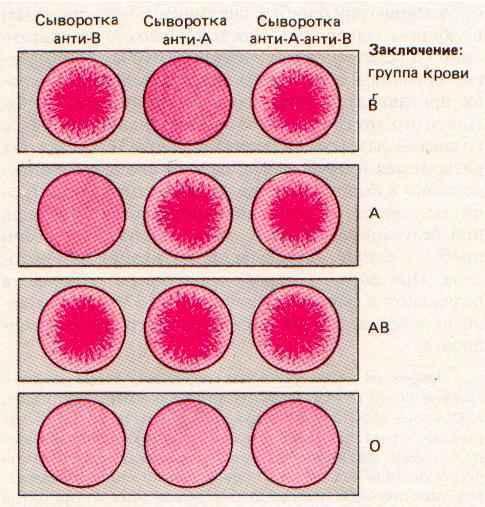 Статистика переливания крови: показания и осложнения