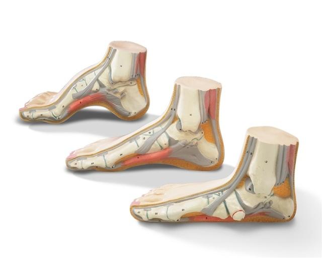 Статистика плоскостопия: причины, методы лечения деформации стопы